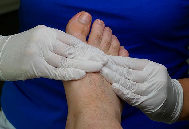 Podólogo especialista en pie diabético