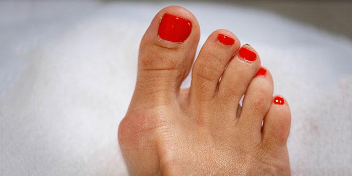 juanetes cirugía del pie ambulatoria