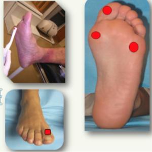 Cuidados del pie diabético y úlceras